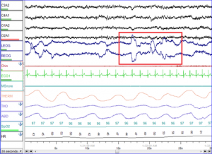 Polysomnographic record of REM sleep. Eye movements highlighted by red rectangle.