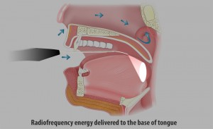 RFA can be a safe, effective, non-surgical solution to your sleep apnea problem.