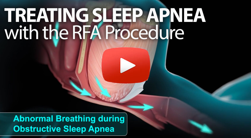 RDI is a numeric index to define the degree of the Sleep apnea
